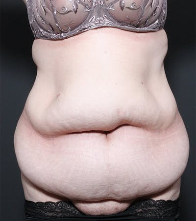 Tummy Tuck Gallery - Patient 20543186 - Image 1