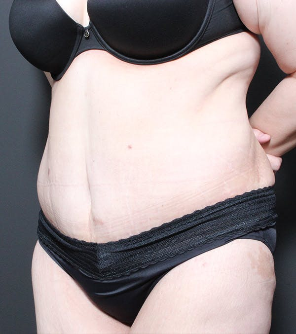 Tummy Tuck Gallery - Patient 20543186 - Image 4