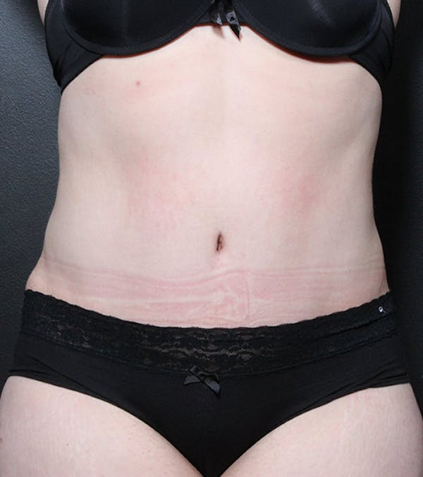 Tummy Tuck Gallery - Patient 20543197 - Image 2