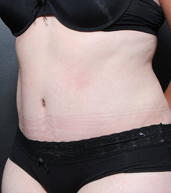 Tummy Tuck Gallery - Patient 20543197 - Image 4