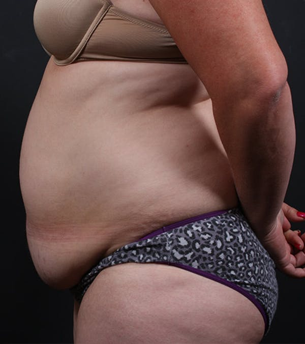 Tummy Tuck Gallery - Patient 20543197 - Image 5