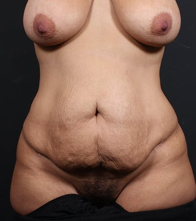 Tummy Tuck Gallery - Patient 20543198 - Image 1