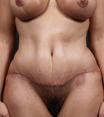 Tummy Tuck Gallery - Patient 20543198 - Image 2