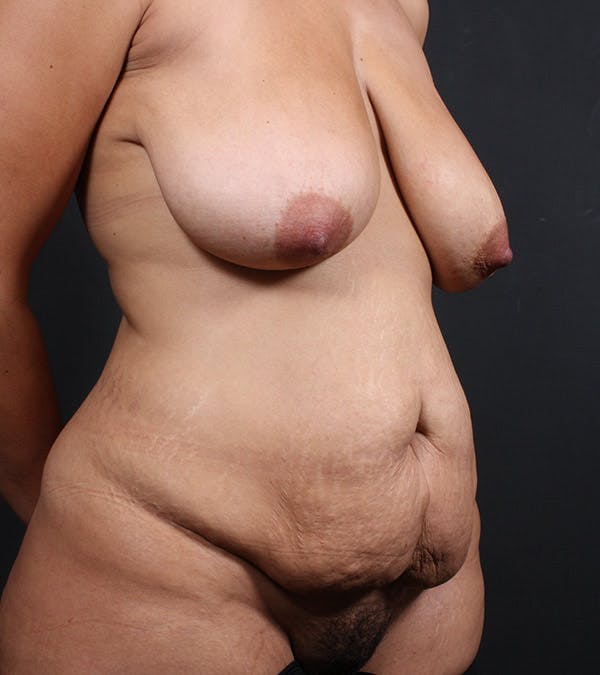 Tummy Tuck Gallery - Patient 20543198 - Image 3