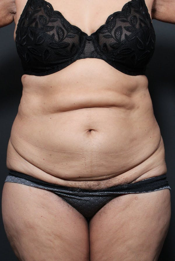 Tummy Tuck Gallery - Patient 20543199 - Image 1