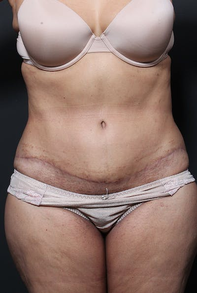 Tummy Tuck Gallery - Patient 20543199 - Image 2