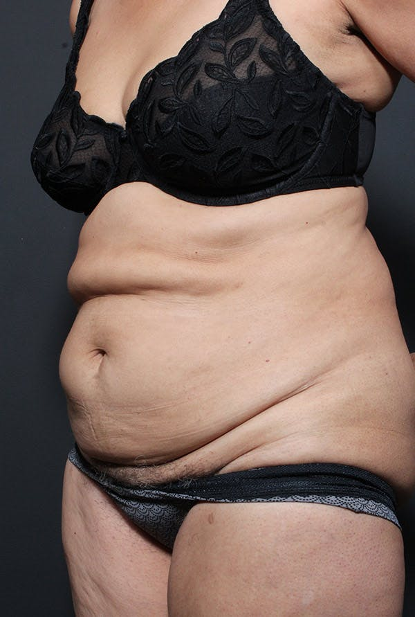 Tummy Tuck Gallery - Patient 20543199 - Image 3