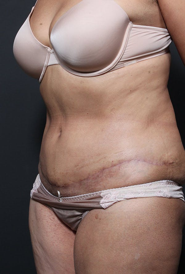 Tummy Tuck Gallery - Patient 20543199 - Image 4