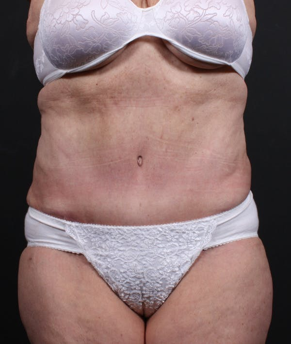 Tummy Tuck Gallery - Patient 20543222 - Image 2