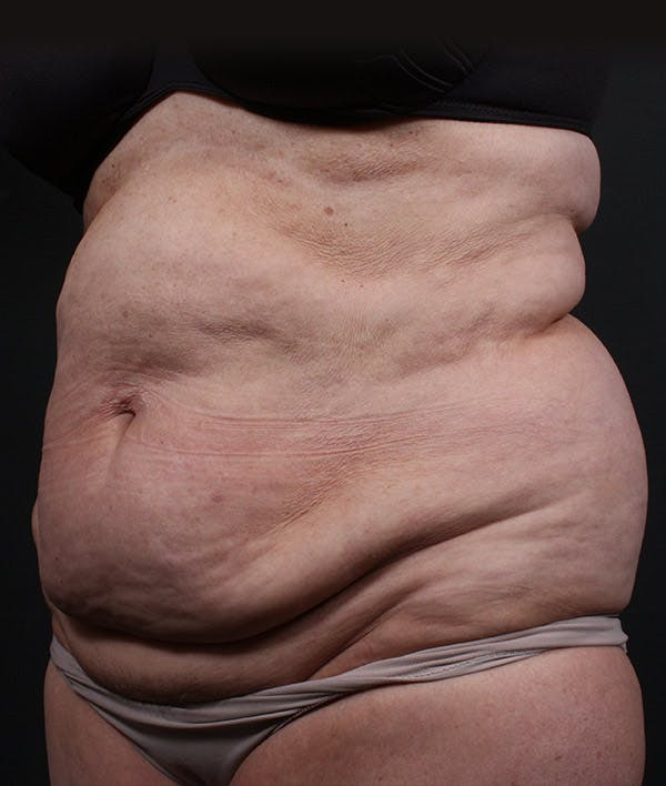 Tummy Tuck Gallery - Patient 20543222 - Image 3