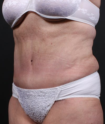 Tummy Tuck Gallery - Patient 20543222 - Image 4