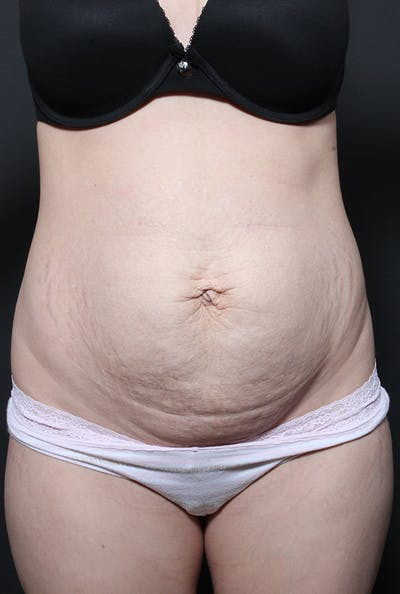 Tummy Tuck Gallery - Patient 20543223 - Image 1