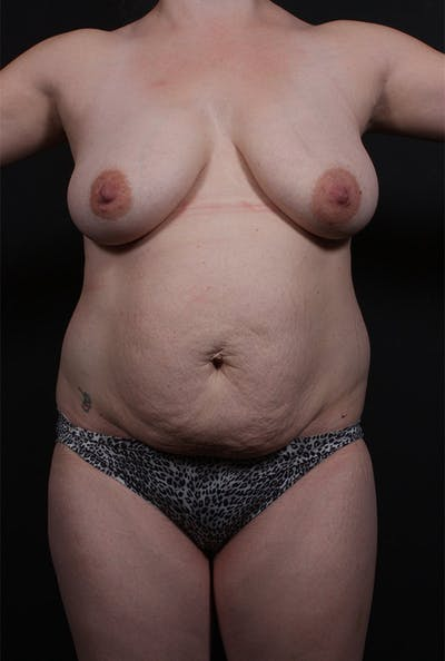 Tummy Tuck Gallery - Patient 20543226 - Image 1