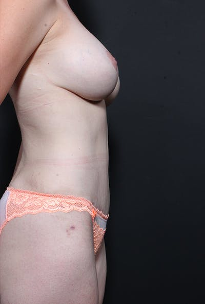 Tummy Tuck Gallery - Patient 20543226 - Image 6