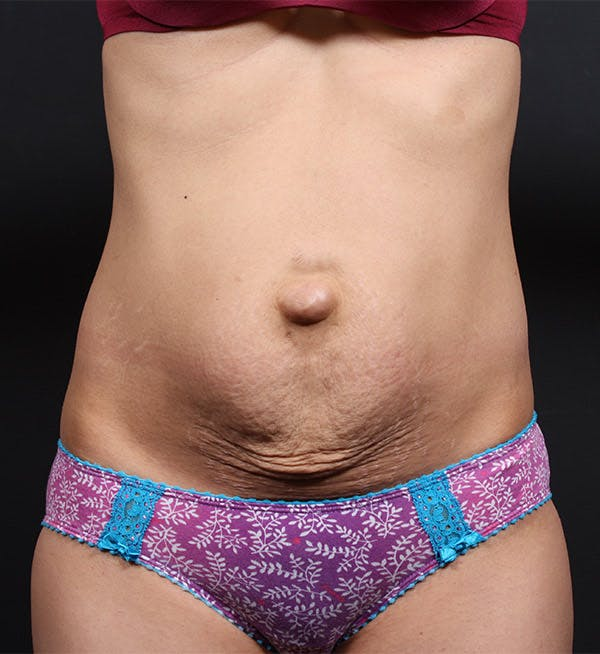 Tummy Tuck Gallery - Patient 20543227 - Image 1