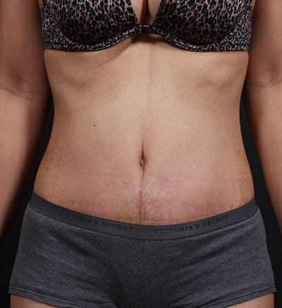 Tummy Tuck Gallery - Patient 20543227 - Image 2
