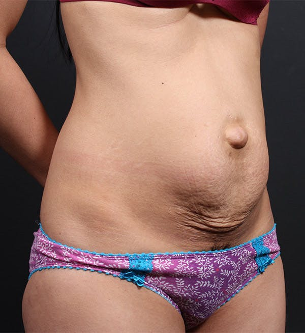 Tummy Tuck Gallery - Patient 20543227 - Image 3