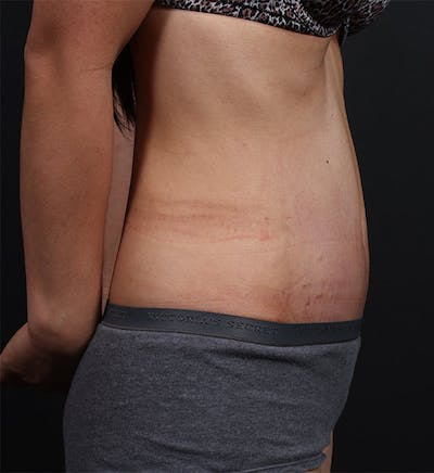 Tummy Tuck Gallery - Patient 20543227 - Image 4