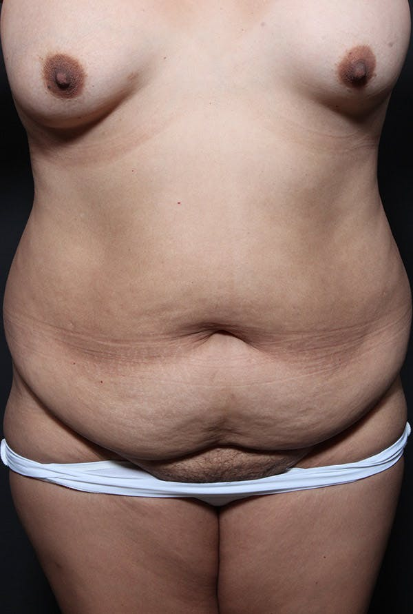 Tummy Tuck Gallery - Patient 20543233 - Image 1