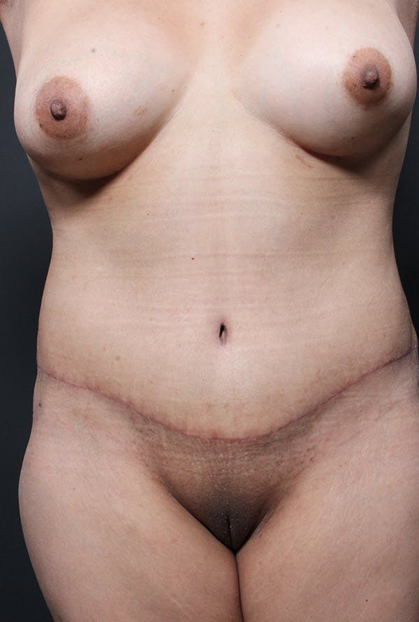 Tummy Tuck Gallery - Patient 20543233 - Image 2