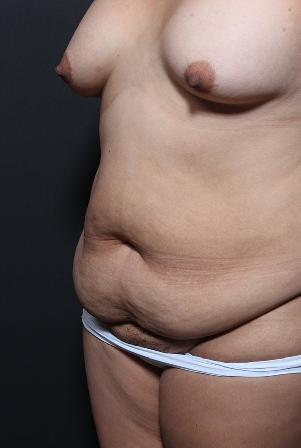 Tummy Tuck Gallery - Patient 20543233 - Image 3