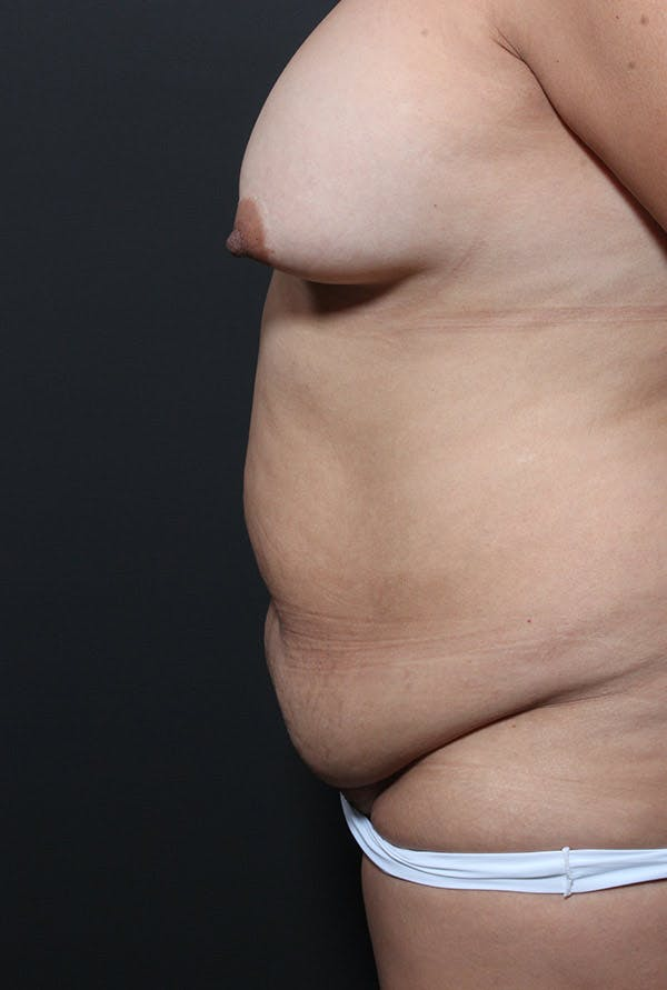 Tummy Tuck Gallery - Patient 20543233 - Image 5