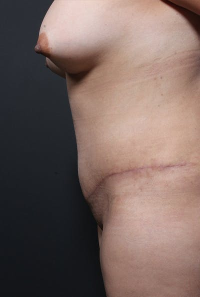 Tummy Tuck Gallery - Patient 20543233 - Image 6