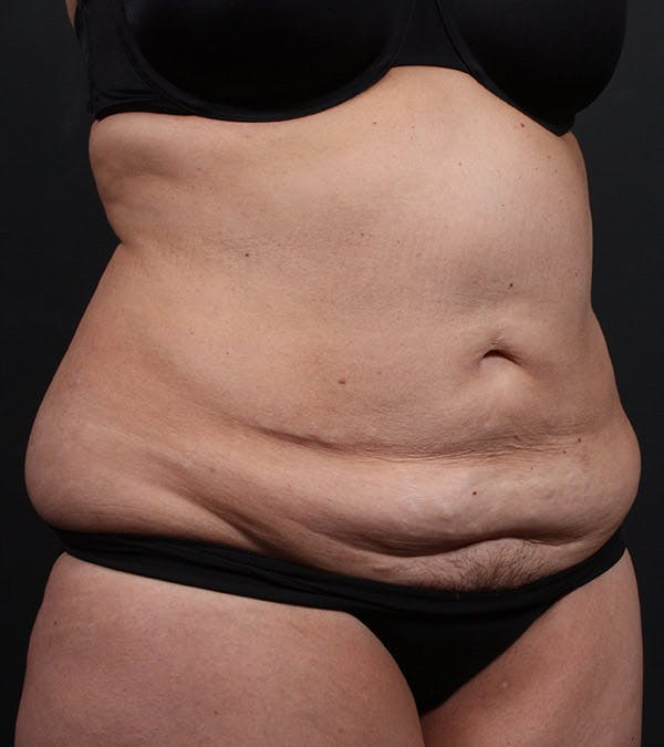 Tummy Tuck Gallery - Patient 20543234 - Image 3