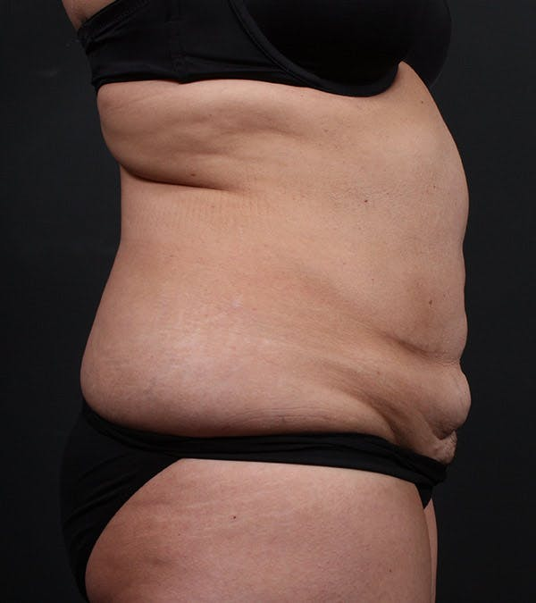 Tummy Tuck Gallery - Patient 20543234 - Image 5