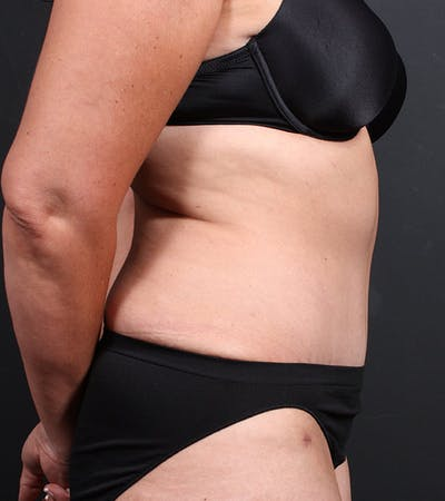 Tummy Tuck Gallery - Patient 20543234 - Image 6