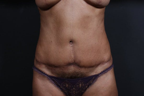 Tummy Tuck Gallery - Patient 20543241 - Image 1