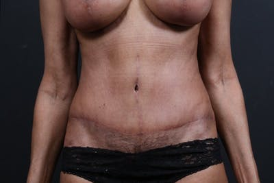 Tummy Tuck Gallery - Patient 20543241 - Image 2