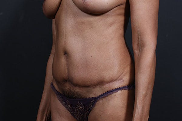 Tummy Tuck Gallery - Patient 20543241 - Image 3