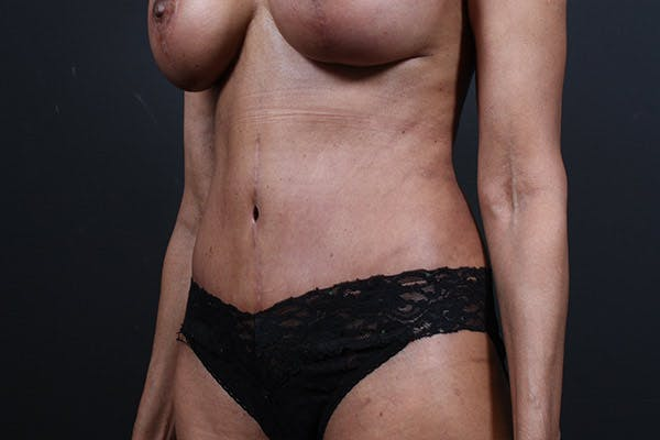 Tummy Tuck Gallery - Patient 20543241 - Image 4