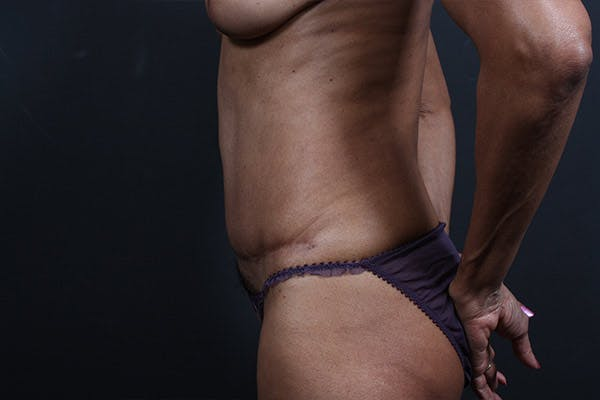 Tummy Tuck Gallery - Patient 20543241 - Image 5