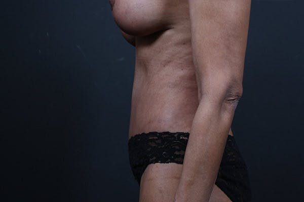 Tummy Tuck Gallery - Patient 20543241 - Image 6