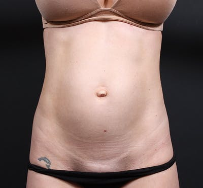 Tummy Tuck Gallery - Patient 20543244 - Image 1