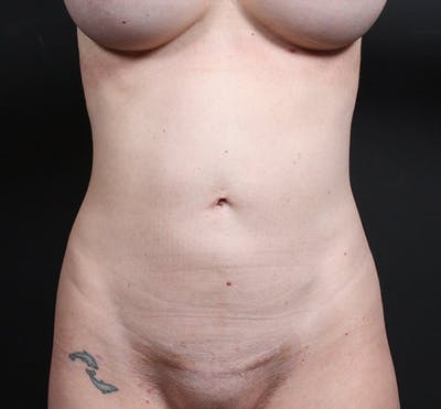 Tummy Tuck Gallery - Patient 20543244 - Image 2