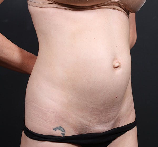 Tummy Tuck Gallery - Patient 20543244 - Image 3