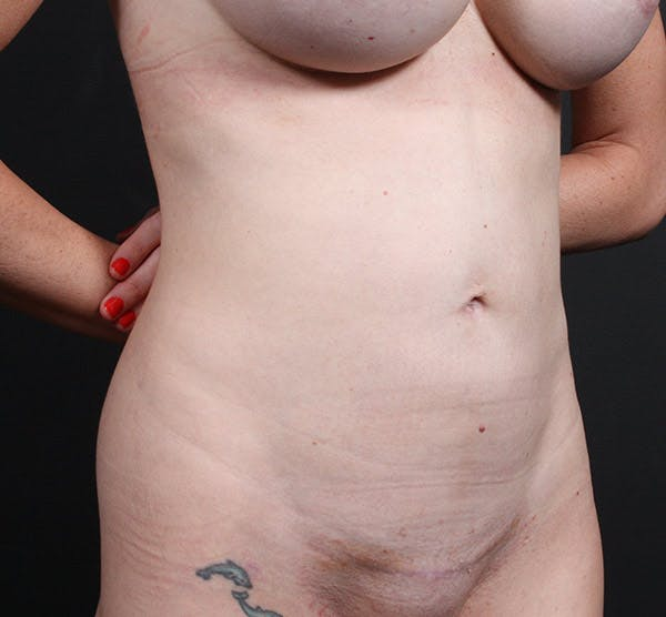Tummy Tuck Gallery - Patient 20543244 - Image 4