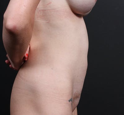 Tummy Tuck Gallery - Patient 20543244 - Image 6