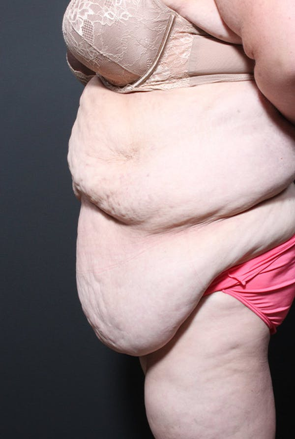 Tummy Tuck Gallery - Patient 20543248 - Image 5