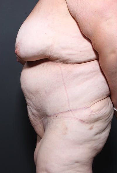 Tummy Tuck Gallery - Patient 20543248 - Image 6