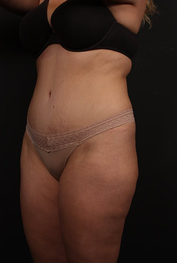 Tummy Tuck Gallery - Patient 20543249 - Image 3