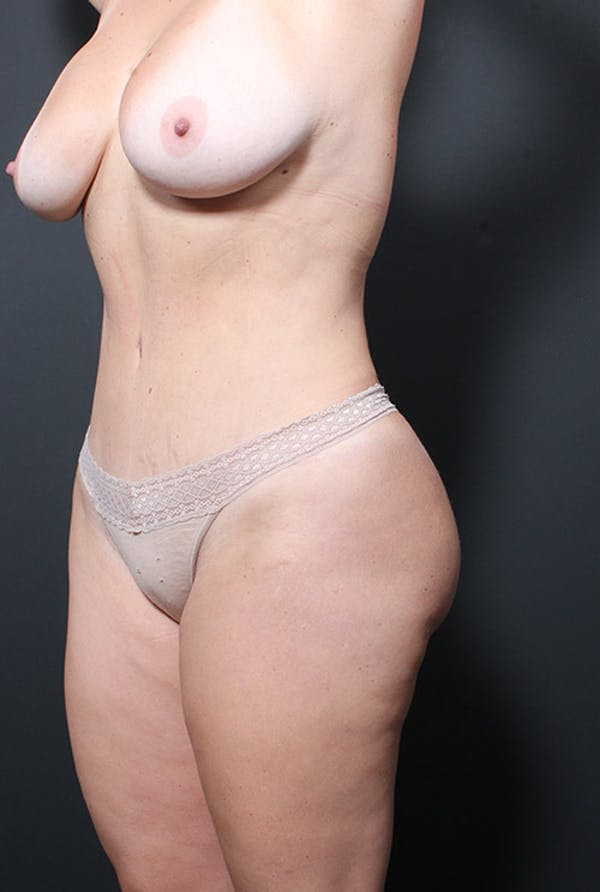 Tummy Tuck Gallery - Patient 20543249 - Image 4