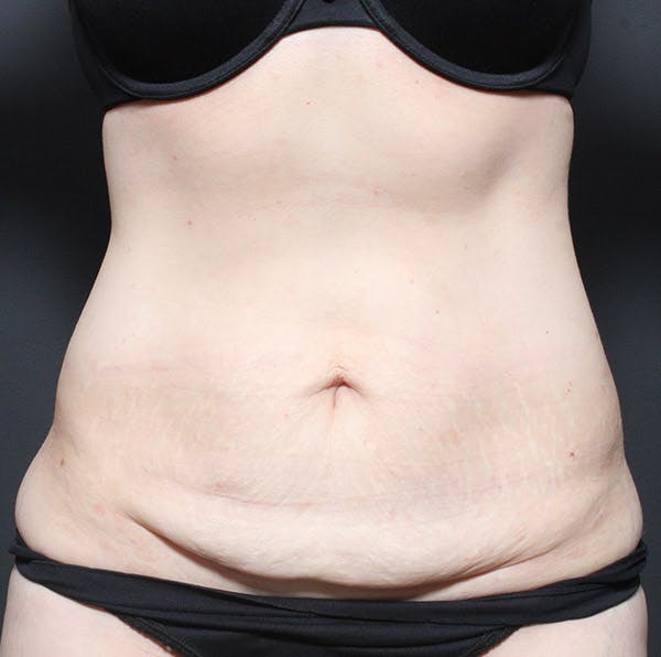 Tummy Tuck Gallery - Patient 20543250 - Image 1