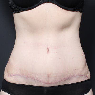 Tummy Tuck Gallery - Patient 20543250 - Image 2