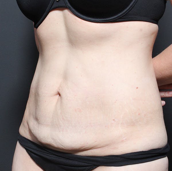 Tummy Tuck Gallery - Patient 20543250 - Image 3