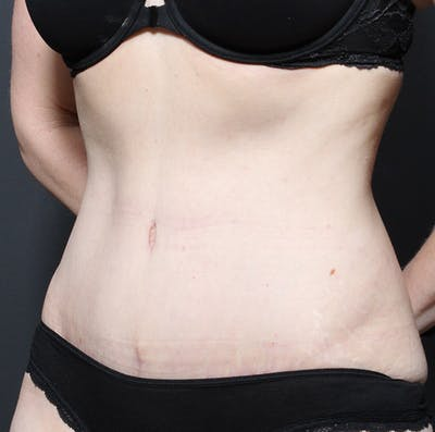 Tummy Tuck Gallery - Patient 20543250 - Image 4