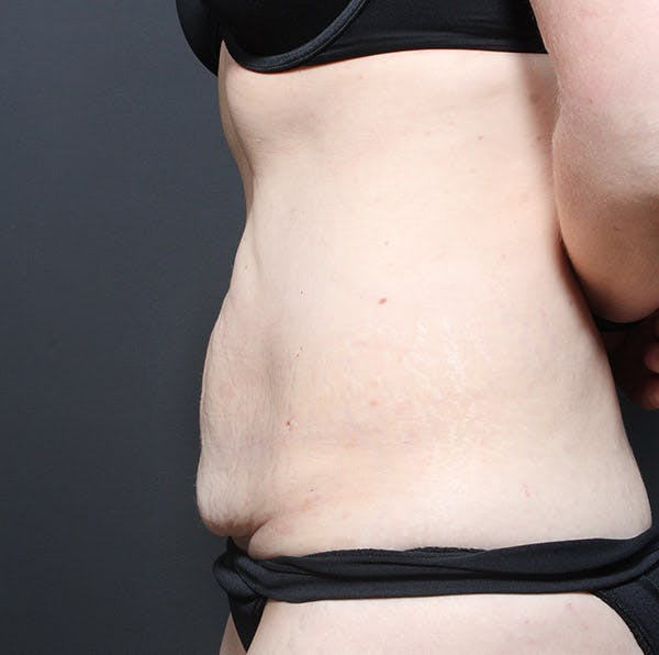 Tummy Tuck Gallery - Patient 20543250 - Image 5